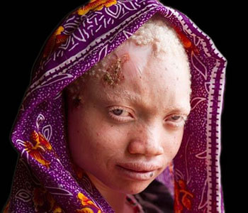 Albinos en Afrique