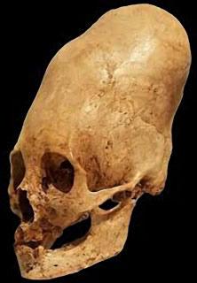 Crâne allongé de Huns