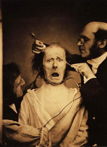 neurologue Duchenne de Boulogne