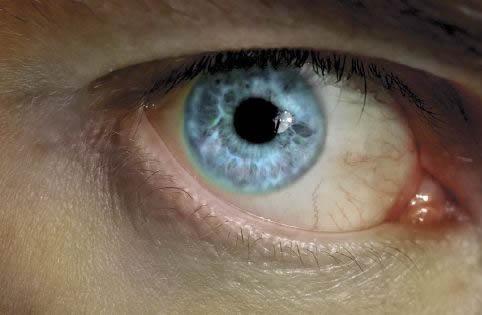 Perception de l'œil