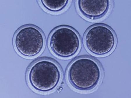 Ovocytes